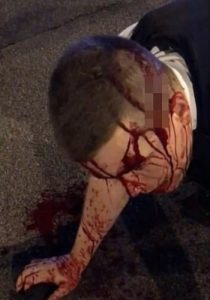 PC Stuart Outten bleeding at the scene of the attack