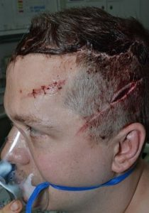 PC Stuart Outten in hospital after the attack